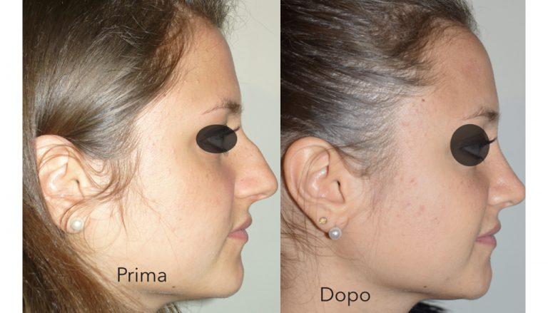 Intervento di rinoplastica: prima e dopo