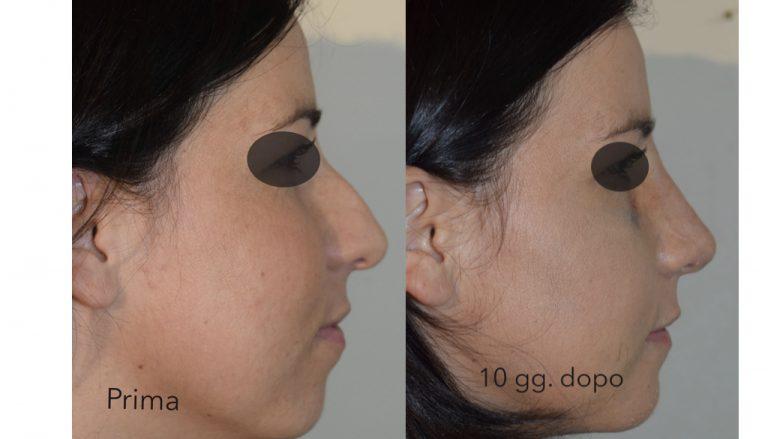 Intervento di profiloplastica a Bari - prima e dopo