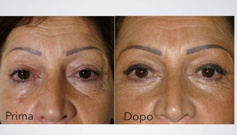 intervento di chirurgia estetica blefaroplastica prima e dopo Bari