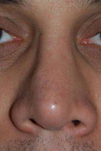 naso insellato
