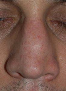 naso insellato operazione