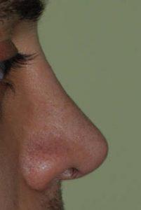 rimodellamento naso insellato