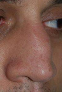 rimodellamento del naso insellato