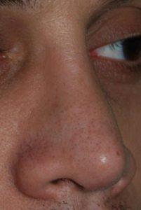 intervento rimodellamento naso insellato