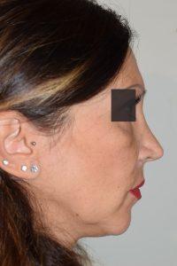 intervento di rinoplastica secondaria bari