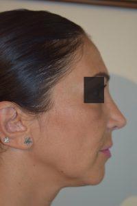 intervento rinoplastica secondaria prima e dopo