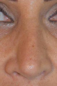 intervento di revisione naso