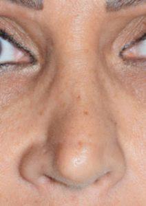 revisione naso