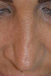 rimodellamento del naso- revisioni