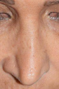 revisione e rimodellamento del naso